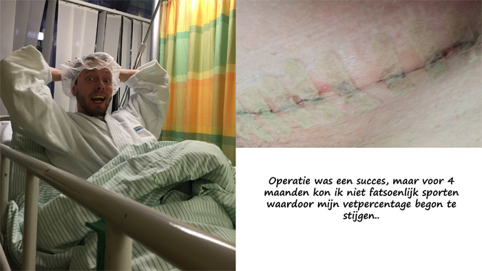 operatieliesbreuk